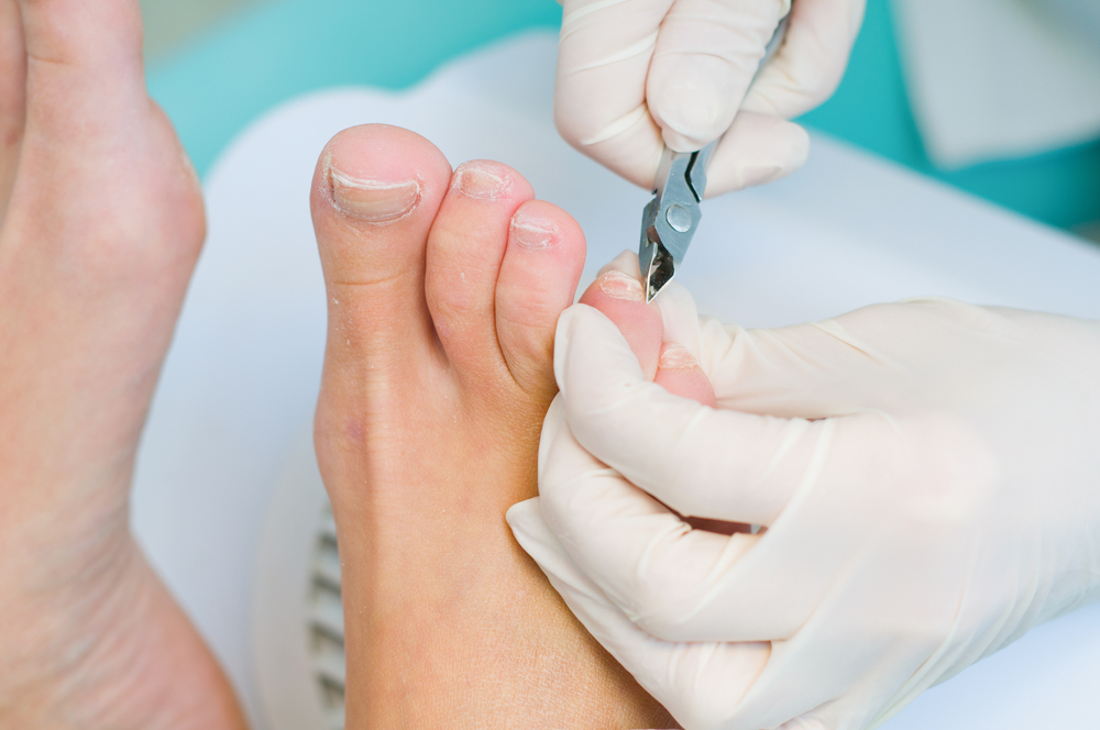 dermatologos-monterrey-cirugia-unas